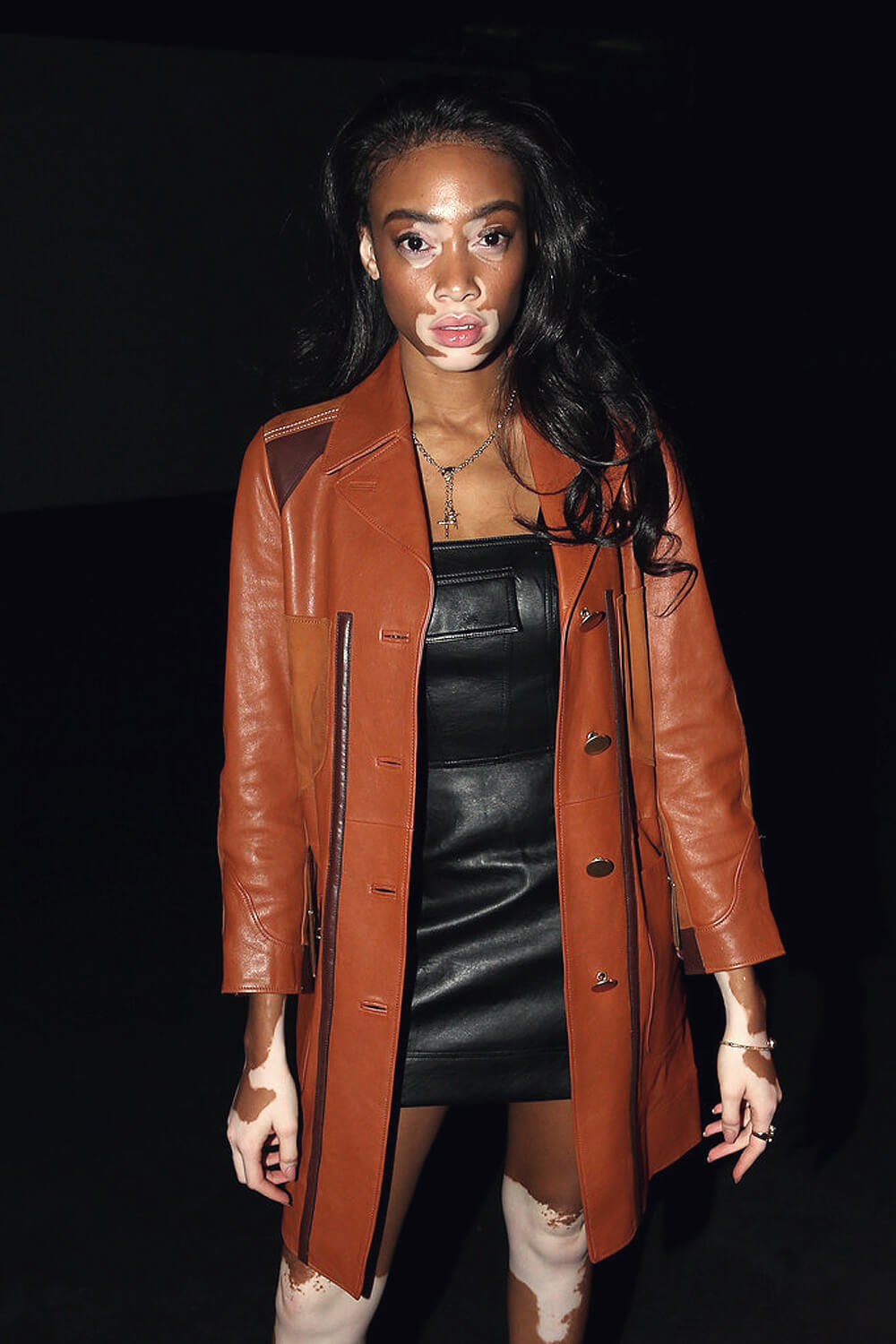 Winnie Harlow attends the Ten Pieces show